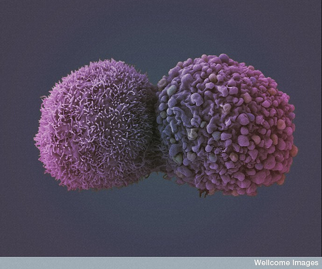 B0007784 Lung cancer cells Credit: Anne Weston, LRI, CRUK. Wellcome Images images@wellcome.ac.uk http://images.wellcome.ac.uk False colour scanning electron micrograph showing two lung cancer cells. These cells were grown using cell culture techniques. Scanning electron micrograph Feb 2010 Published:  -   Copyrighted work available under Creative Commons by-nc-nd 2.0 UK, see http://images.wellcome.ac.uk/indexplus/page/Prices.html